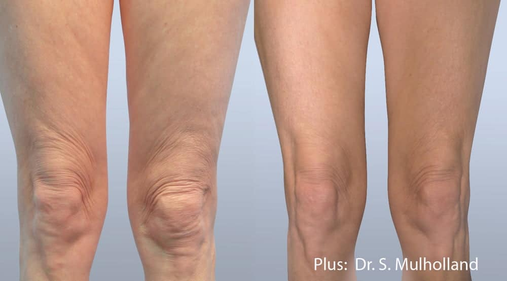 Leg Body Contouring Before and After