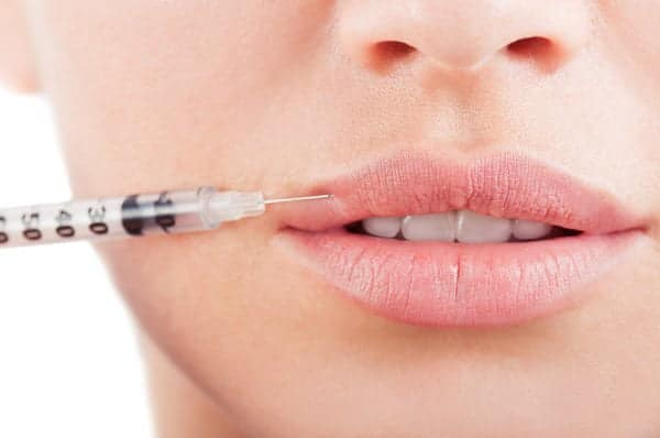 Dermal fillers Vaughan