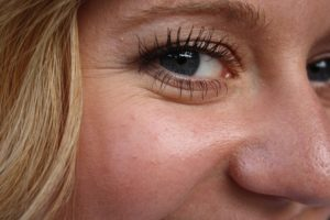 Botox Injections For Wrinkles