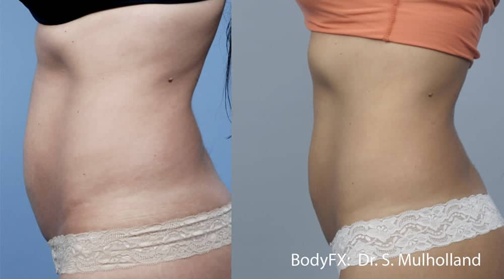 BodyFX Body Contouring Before and After