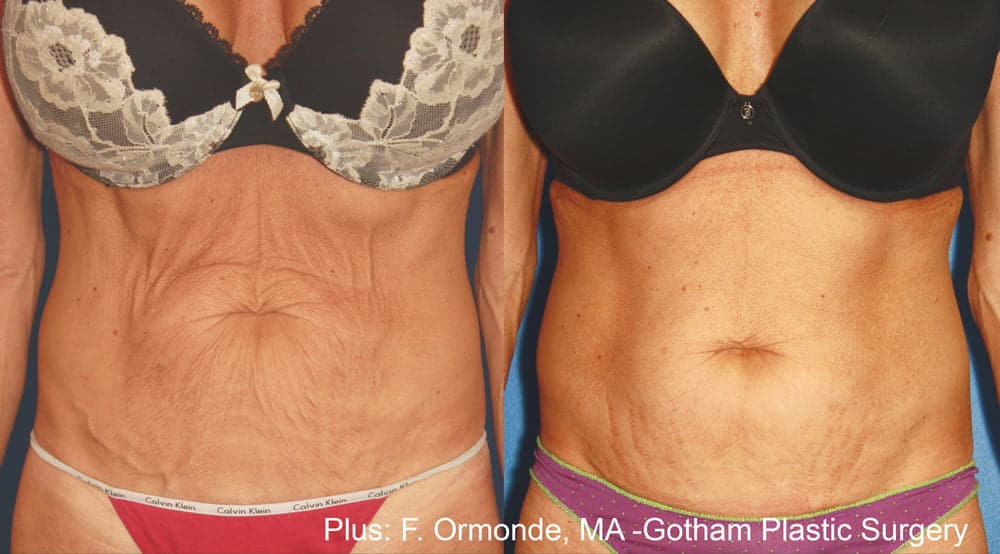 Body Contouring and BodyFX Service Before and After