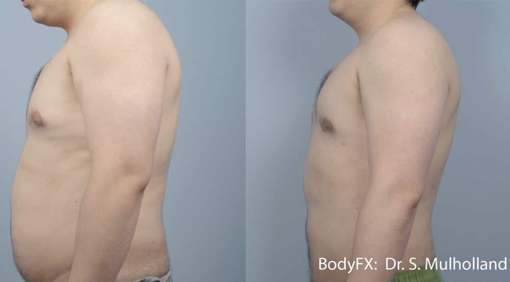 Body Contouring Before and After BodyFX